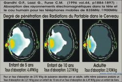 Degre de penetration des radiations portable dans le cerveau